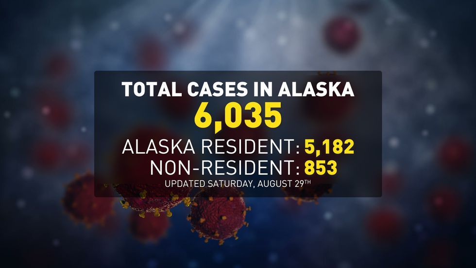 DHSS reports 92 COVID-19 cases among Alaska residents