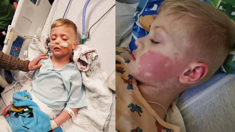 Cameron Dye, 6, from Eagle River ended up in the intensive care unit with MIS-C.