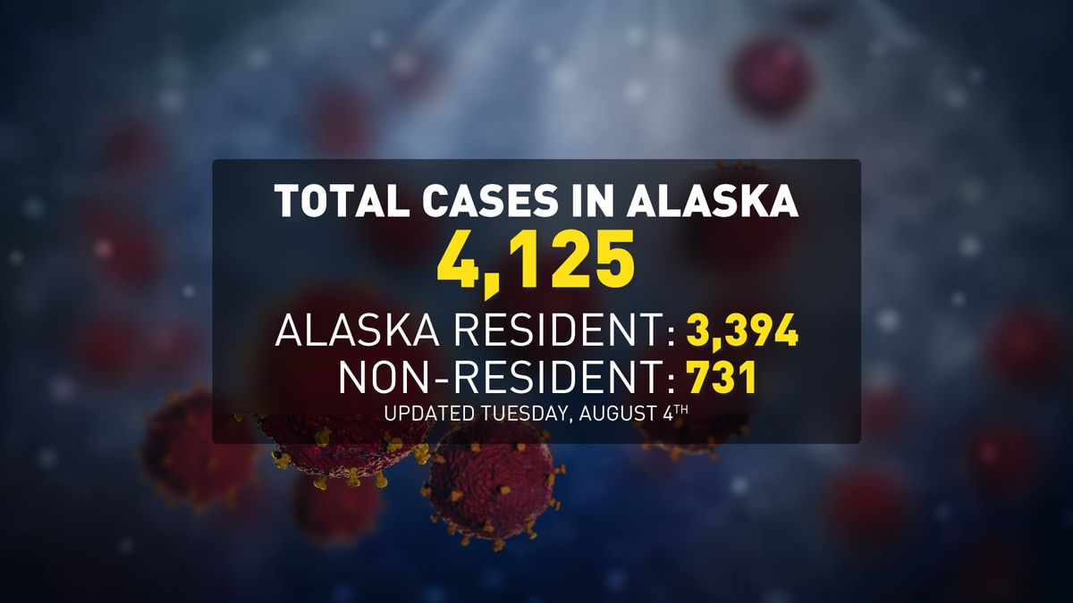 DHSS reports 59 new COVID-19 cases in Alaska among residents