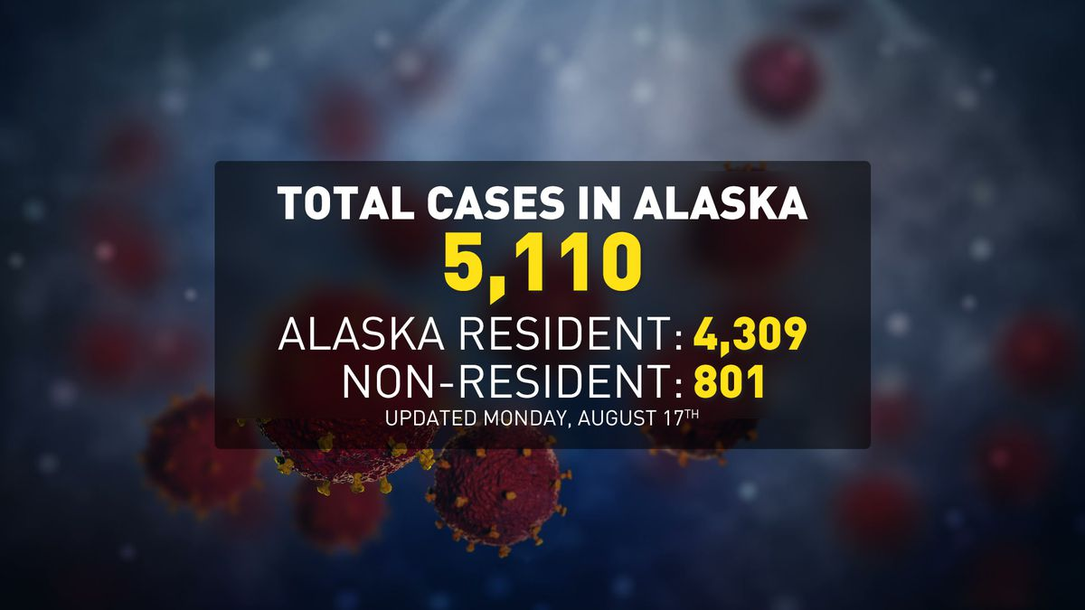 DHSS reports 50 new COVID-19 cases among Alaska residents