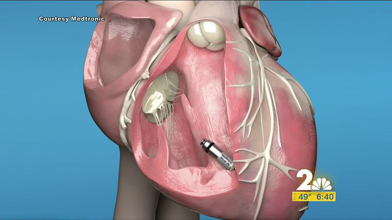 Remote pacemaker adjustments could reduce the need for patients to travel long distances.